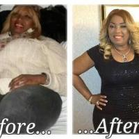 Weight Loss Before & After Of PP Barbara Brown